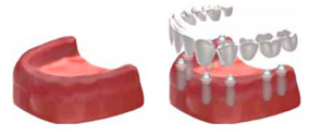 Dental Implants In Cape Town