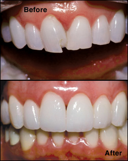 Composite bonding for chipped teeth
