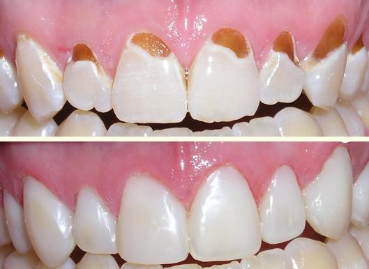 What is Dental Bonding? West Nyack Dentist Explains
