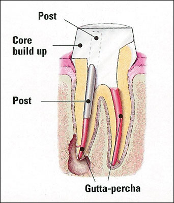 schematic of post and core